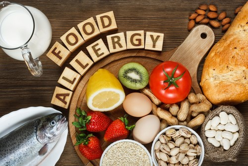Food allergies are not always taken seriously. Why? (Photo taken from Google Images.)